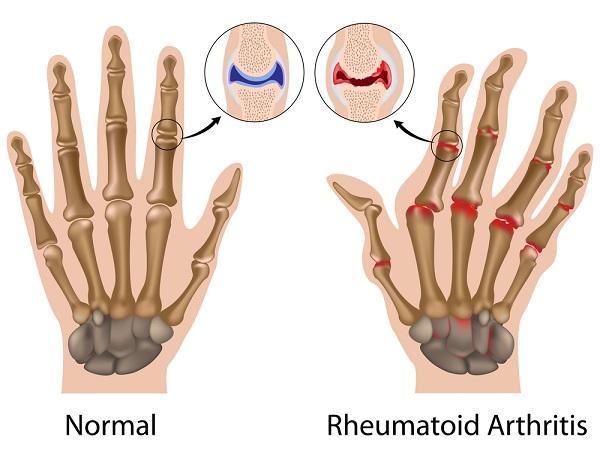 artritis-2
