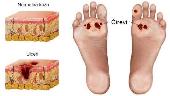 dijabetes-i-stopala-1