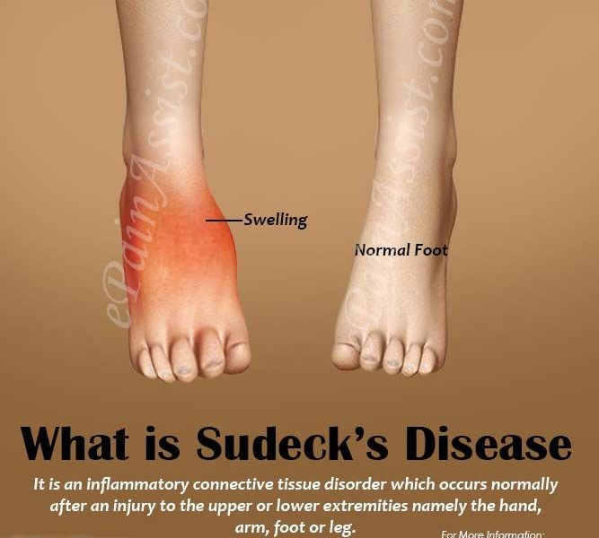 sudekova-bolest
